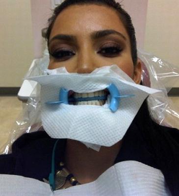Kim Kardashian u dentysty!
